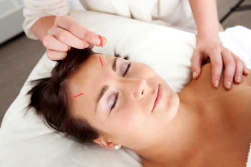 stress and acupuncture