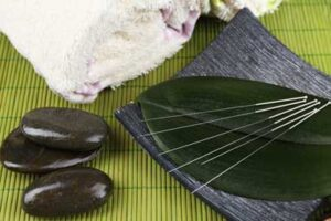 acupuncture services in oriole
