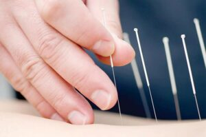 oriole acupuncture services