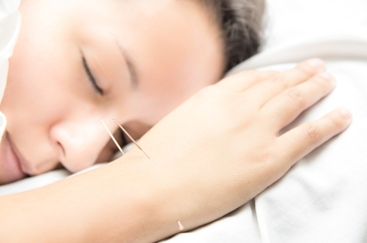 Five Health Concerns That Can Be Treated with Acupuncture