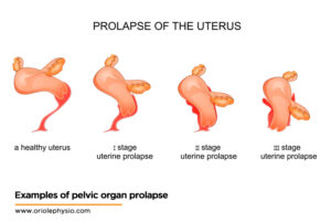 Examples-of-pelvic-organ-prolapse