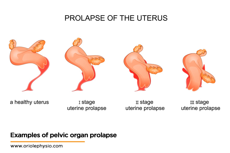 Examples-of-pelvic-organ-prolapse