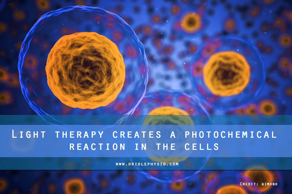 Light therapy creates a photochemical reaction in the cells
