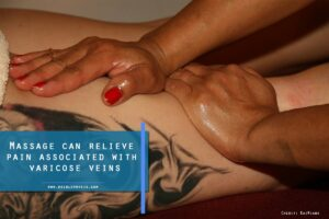 Massage can relieve pain associated with varicose veins