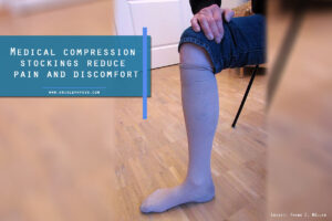 Medical compression stockings reduce pain and discomfort