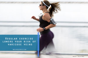 Regular exercise lowers your risk of varicose veins
