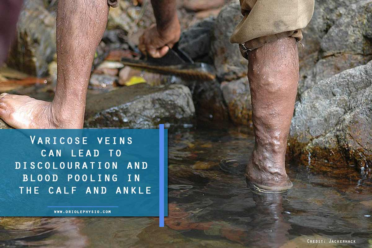 Varicose veins can lead to discolouration and blood pooling in the calf and ankle