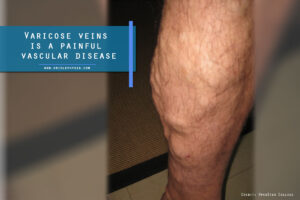 Varicose veins is a painful vascular disease