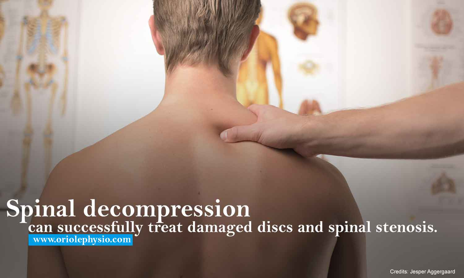 Spinal decompression can successfully treat damaged discs and spinal stenosis.