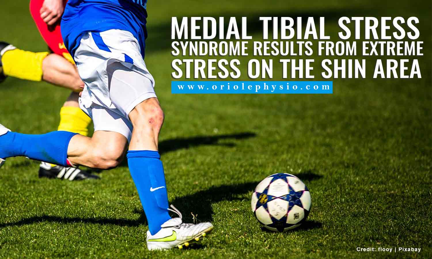 Medial tibial stress syndrome results from extreme stress on the shin area
