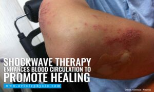 Shockwave therapy enhances blood circulation to promote healing