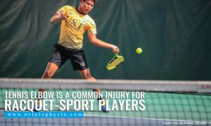 Tennis Elbow is a common injury for racquet-sport players