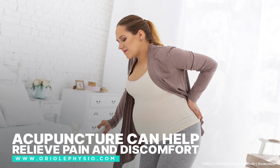 Acupuncture can help relieve pain and discomfort