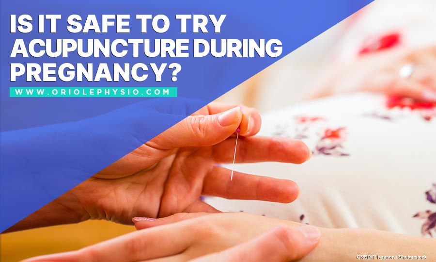 Is It Safe to Try Acupuncture During Pregnancy?