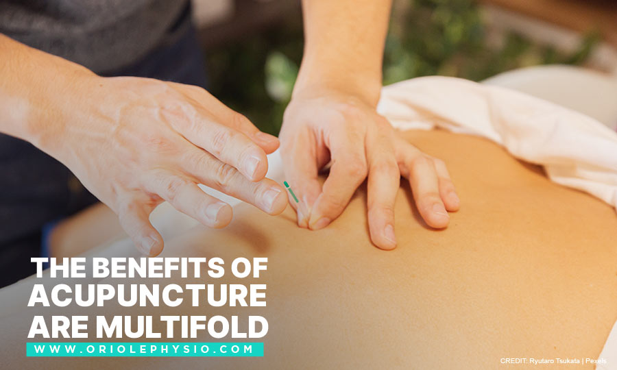 The benefits of acupuncture are multifold