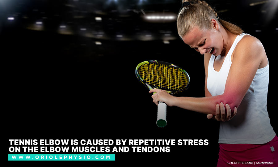 Tennis elbow is caused by repetitive stress on the elbow muscles and tendons